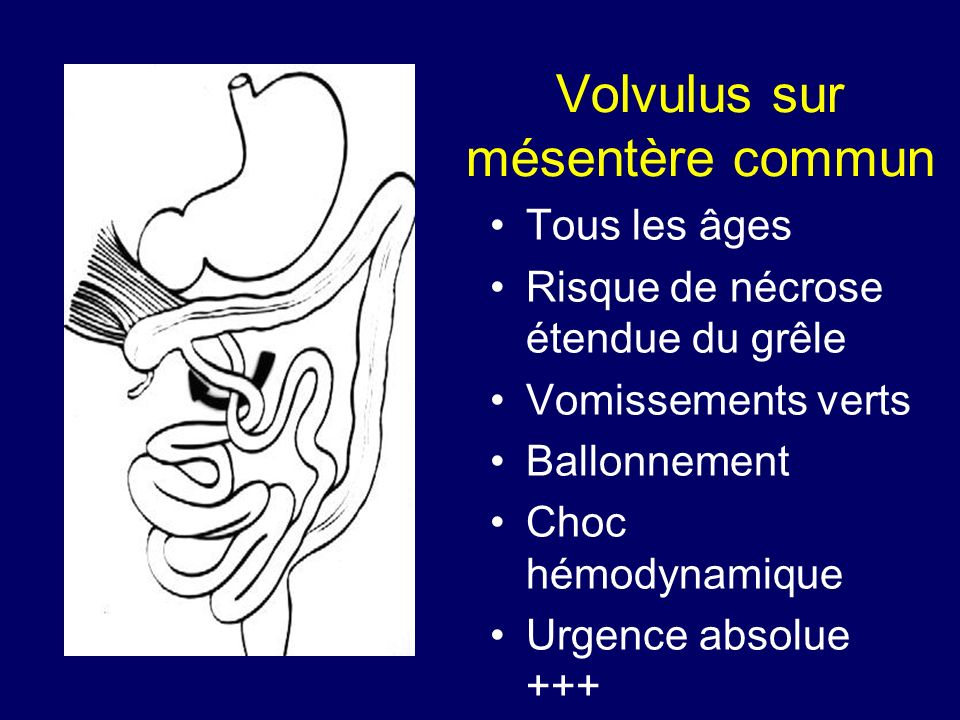 Volvulus sur mésentère commun