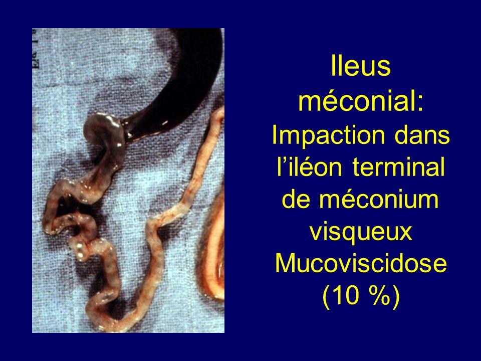 Ileus méconial: Impaction dans l'iléon terminal de méconium visqueux Mucoviscidose (10 %)