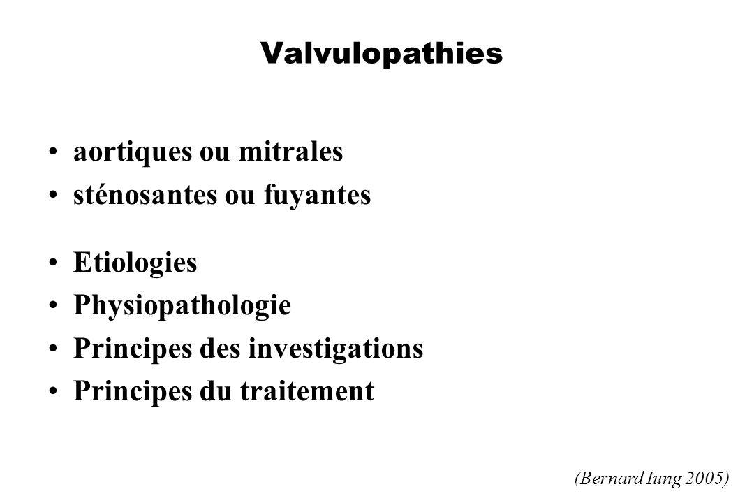 sténosantes ou fuyantes Etiologies Physiopathologie