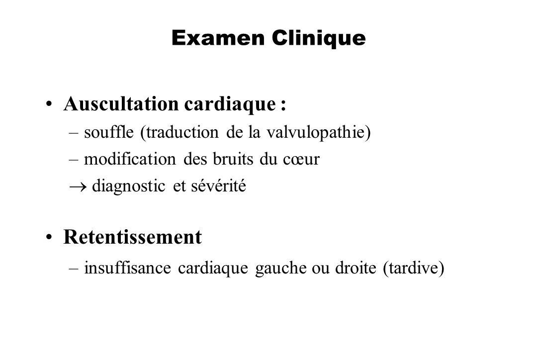 Auscultation cardiaque :