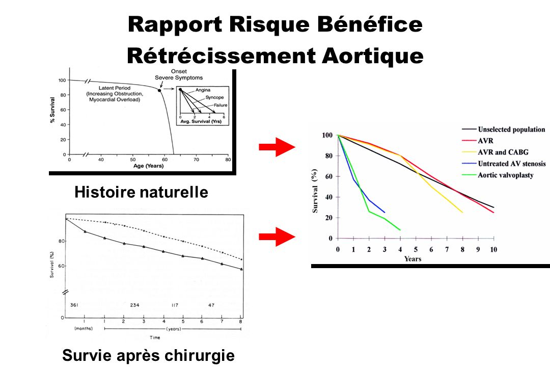 Rapport Risque Bénéfice Rétrécissement Aortique