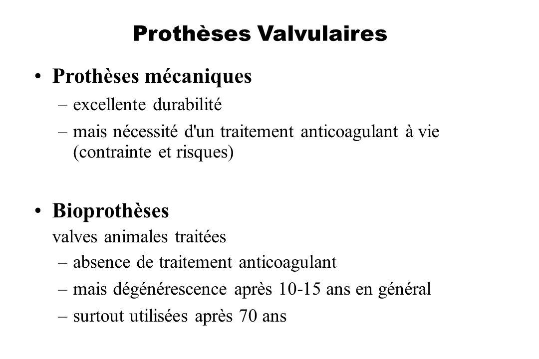 Prothèses Valvulaires