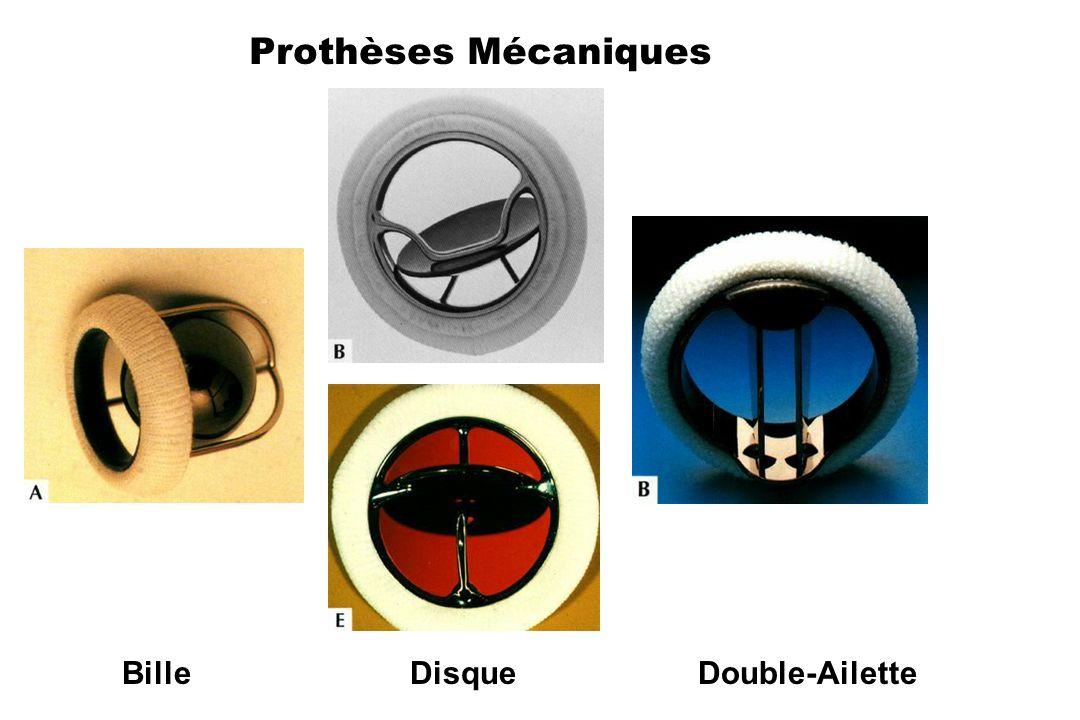 Prothèses Mécaniques Bille Disque Double-Ailette