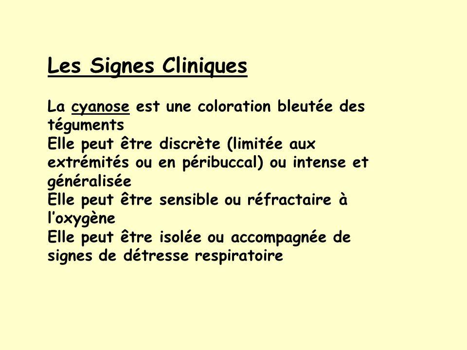 Les Signes Cliniques La cyanose est une coloration bleutée des téguments.