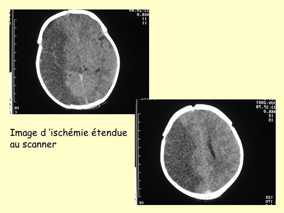 Image d 'ischémie étendue au scanner