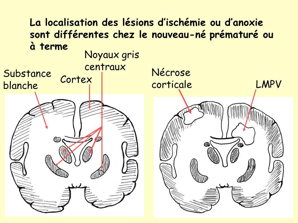 La localisation des lésions d'ischémie ou d'anoxie sont différentes chez le nouveau-né prématuré ou à terme