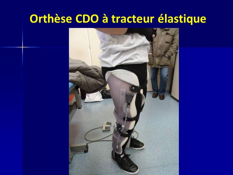 Orthèse CDO à tracteur élastique