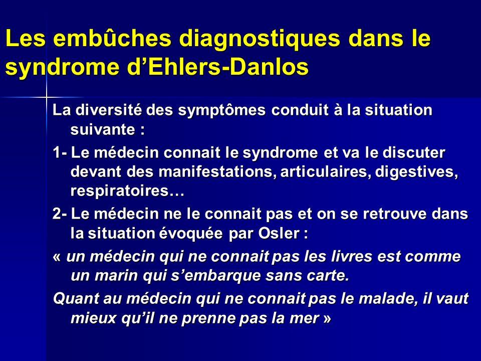 Les embûches diagnostiques dans le syndrome d'Ehlers-Danlos