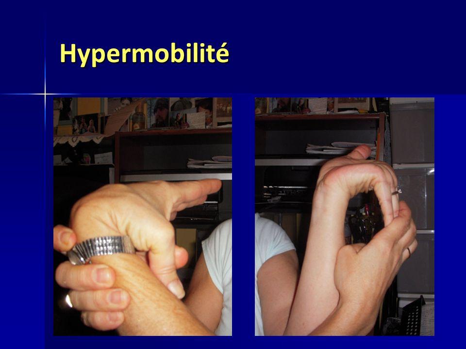 Hypermobilité