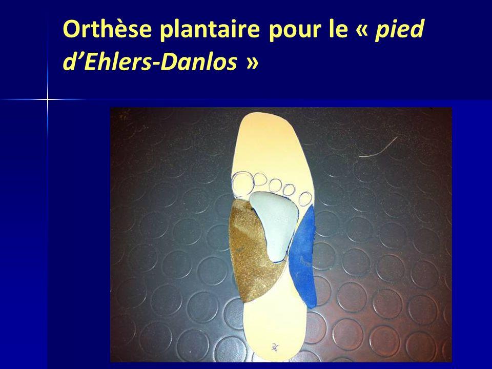 Orthèse plantaire pour le « pied d'Ehlers-Danlos »