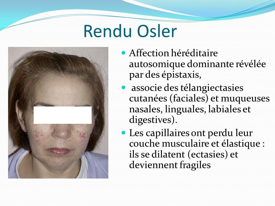 Rendu Osler Affection héréditaire autosomique dominante révélée par des épistaxis,