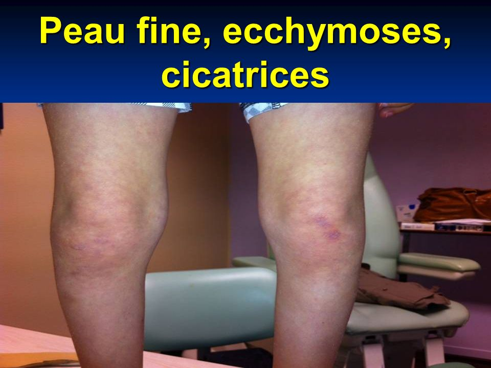 Peau fine, ecchymoses, cicatrices