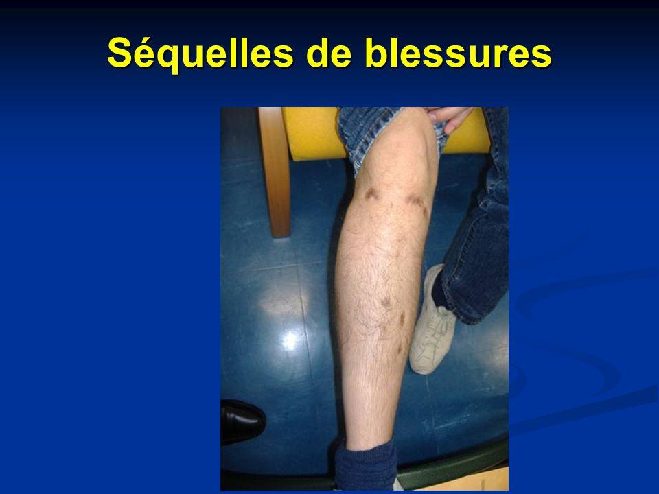 Séquelles de blessures