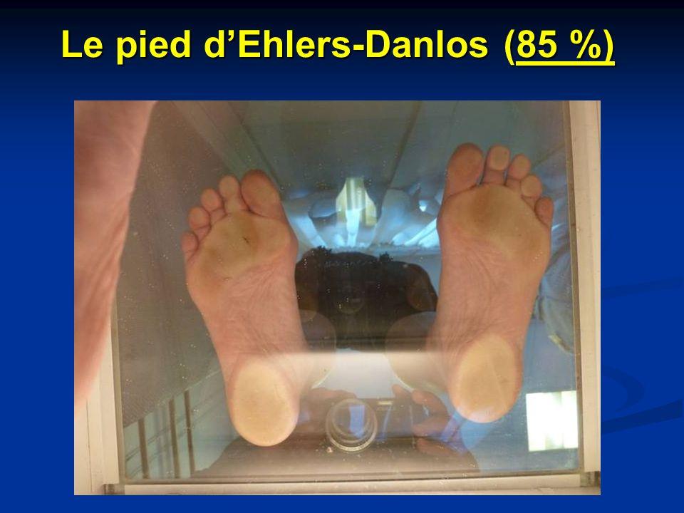 Le pied d'Ehlers-Danlos (85 %)
