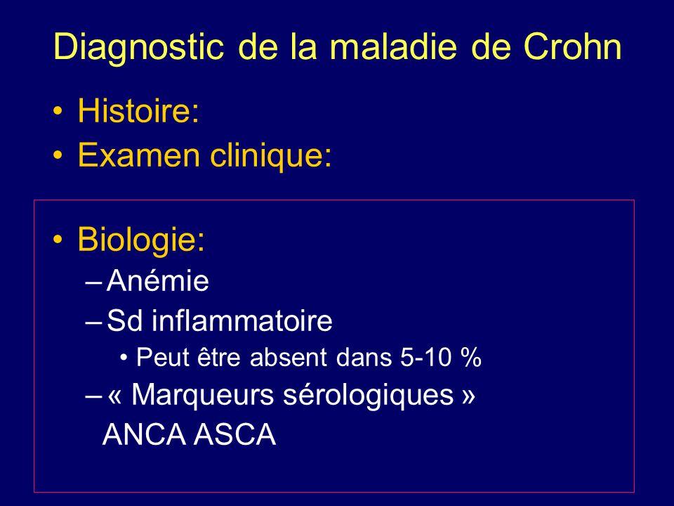 Diagnostic de la maladie de Crohn