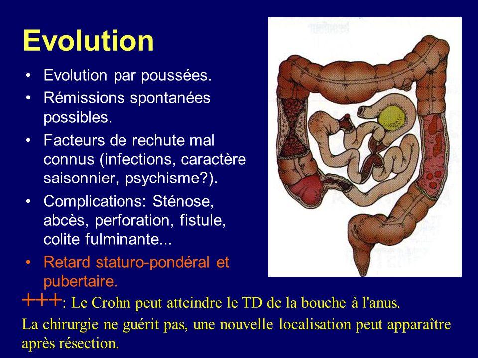 Evolution +++: Le Crohn peut atteindre le TD de la bouche à l anus.