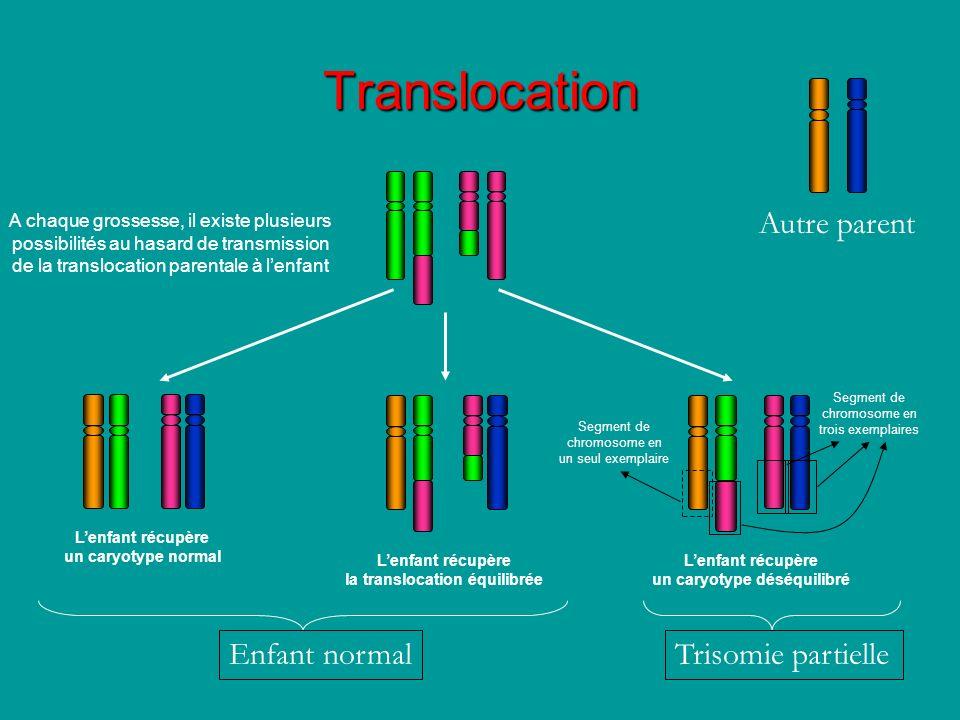 la translocation équilibrée un caryotype déséquilibré