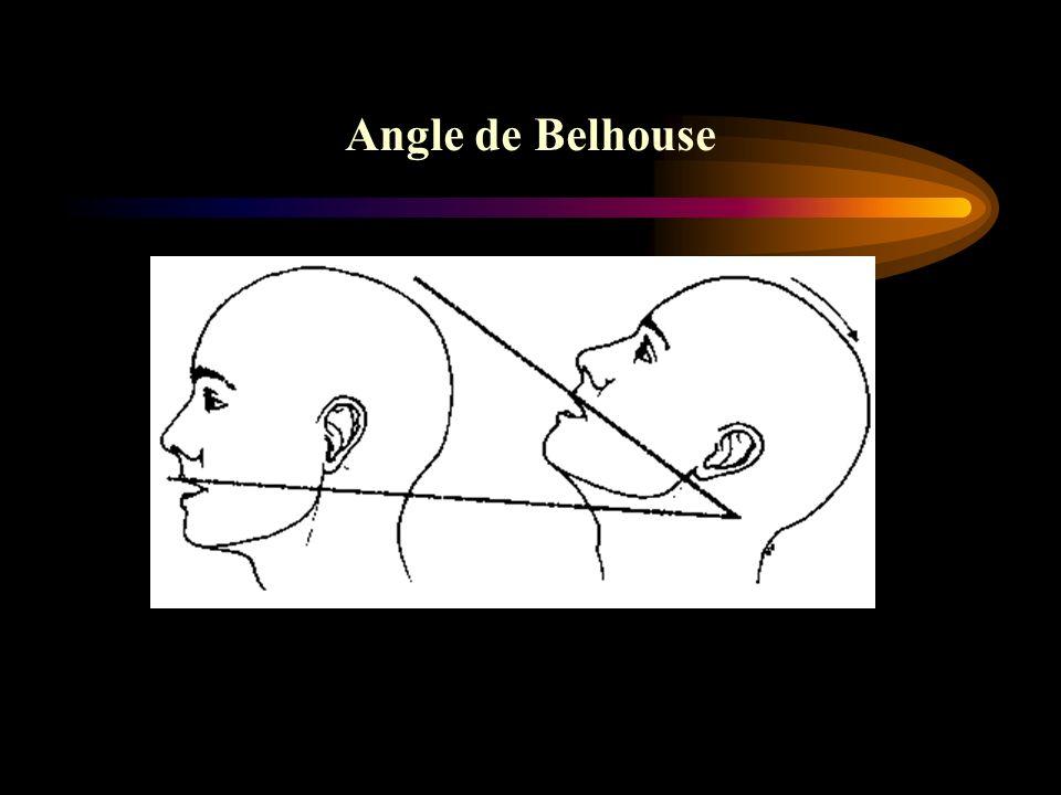 Angle de Belhouse