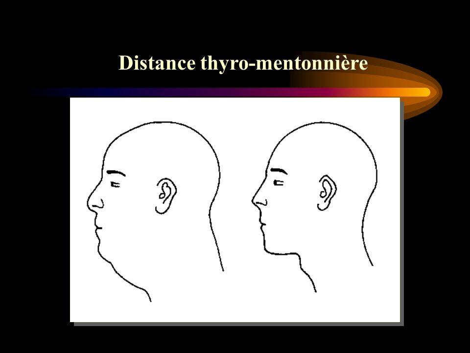 Distance thyro-mentonnière