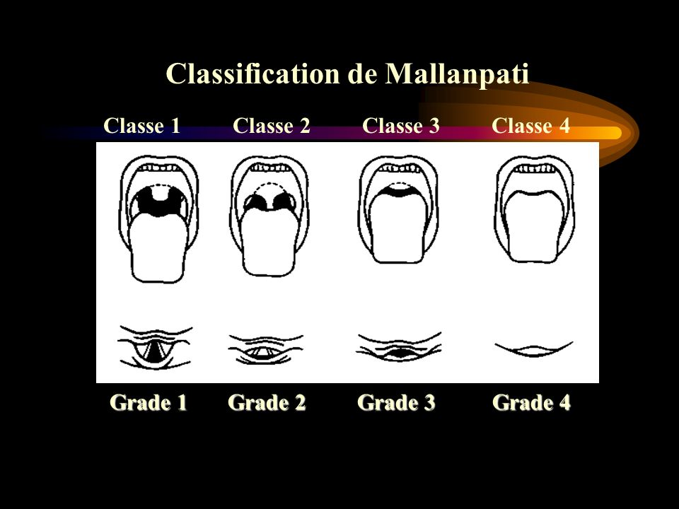 Classification de Mallanpati