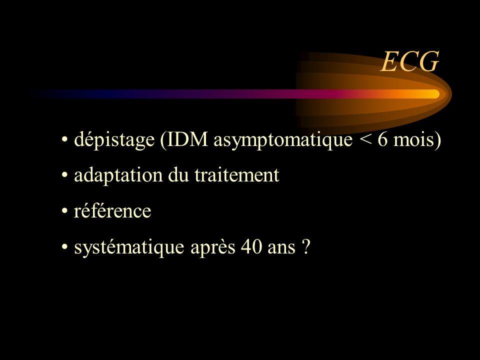 ECG dépistage (IDM asymptomatique < 6 mois)