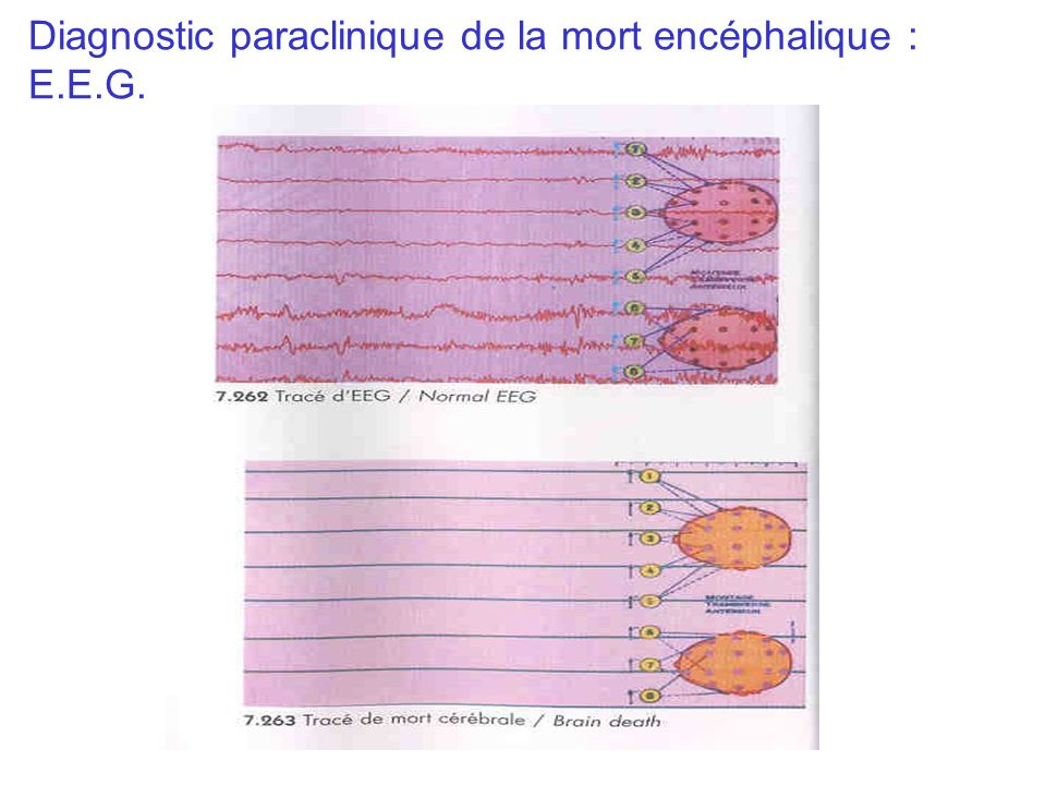 Diagnostic paraclinique de la mort encéphalique : E.E.G.
