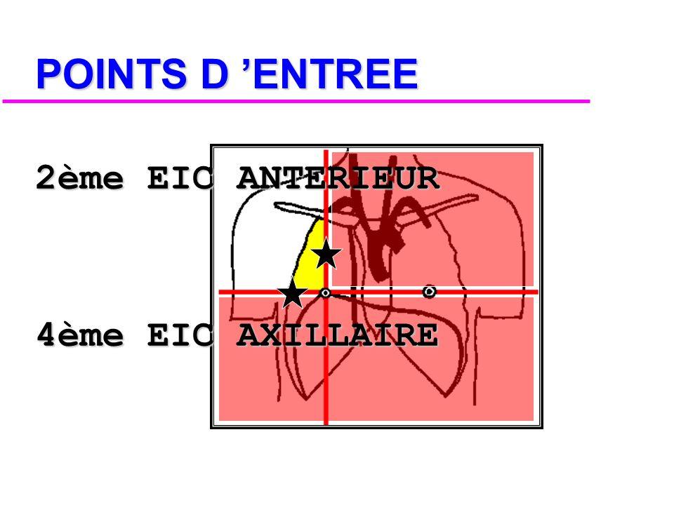 POINTS D 'ENTREE 2ème EIC ANTERIEUR 4ème EIC AXILLAIRE