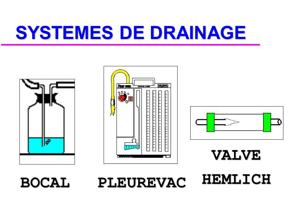 SYSTEMES DE DRAINAGE PLEUREVAC BOCAL VALVE HEMLICH