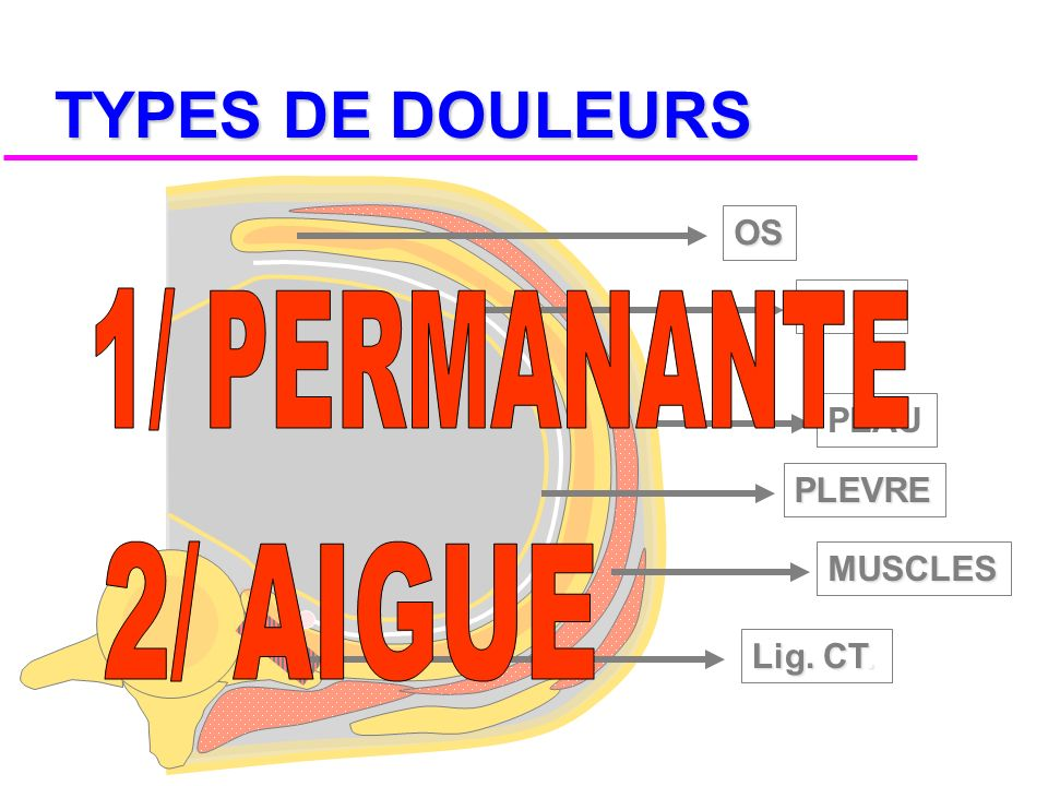TYPES DE DOULEURS 1/ PERMANANTE 2/ AIGUE OS N. IC. PEAU PLEVRE MUSCLES