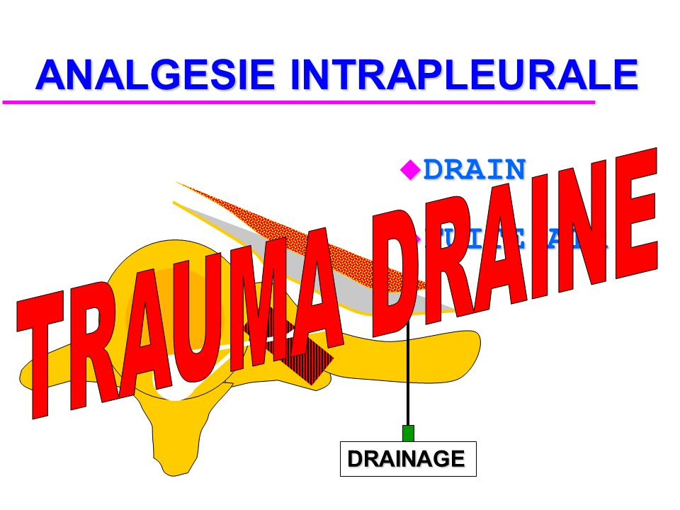 ANALGESIE INTRAPLEURALE