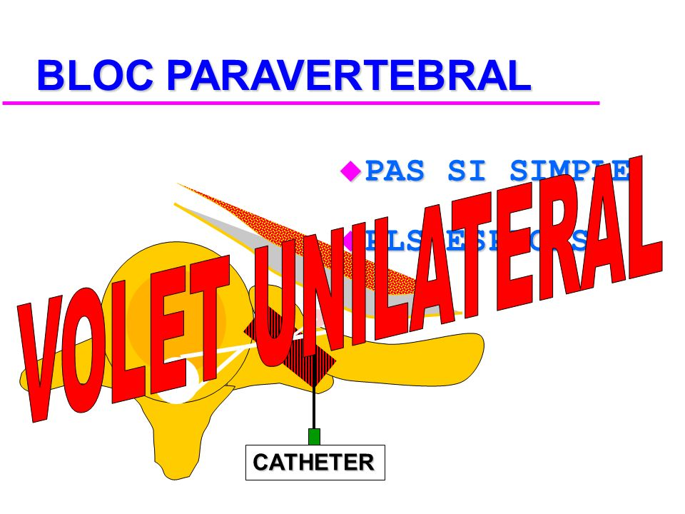 BLOC PARAVERTEBRAL PAS SI SIMPLE PLS ESPACES VOLET UNILATERAL CATHETER