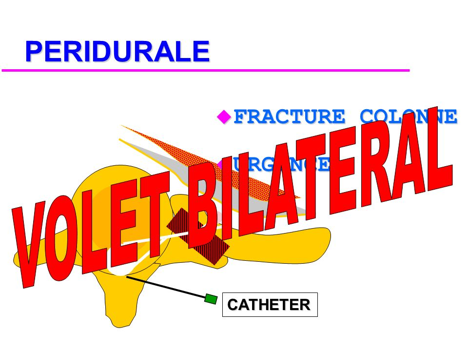 PERIDURALE FRACTURE COLONNE URGENCE VOLET BILATERAL CATHETER