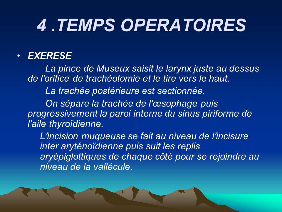 4 .TEMPS OPERATOIRES EXERESE