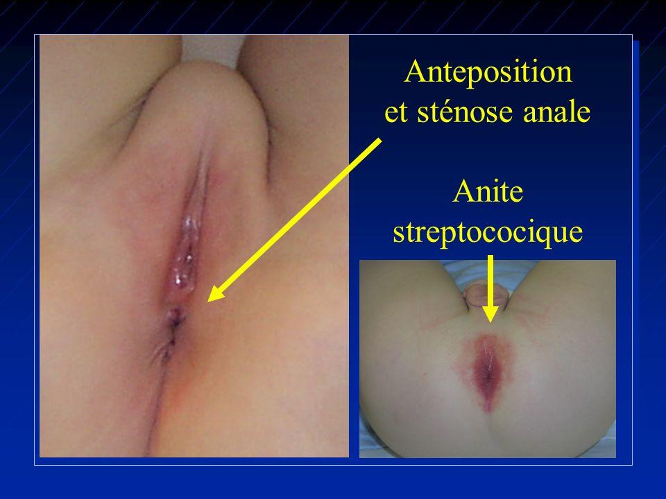 Anteposition et sténose anale Anite streptococique