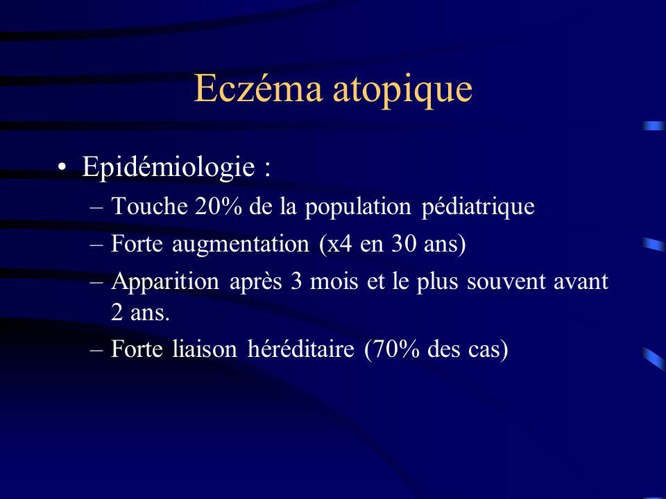 Eczéma atopique Epidémiologie :