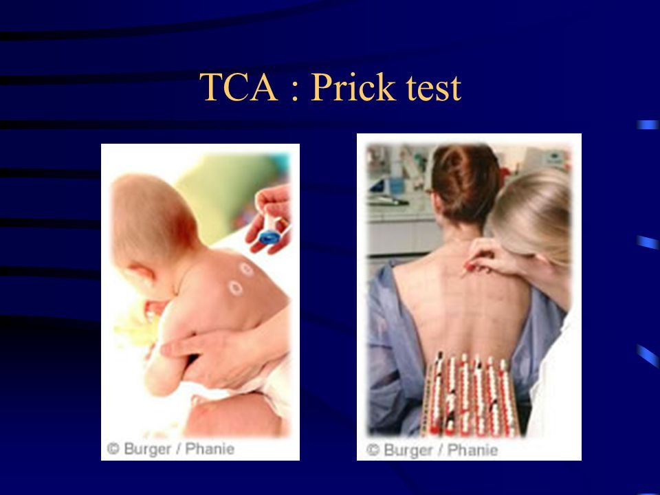 TCA : Prick test