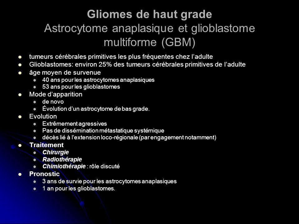 Gliomes de haut grade Astrocytome anaplasique et glioblastome multiforme (GBM)