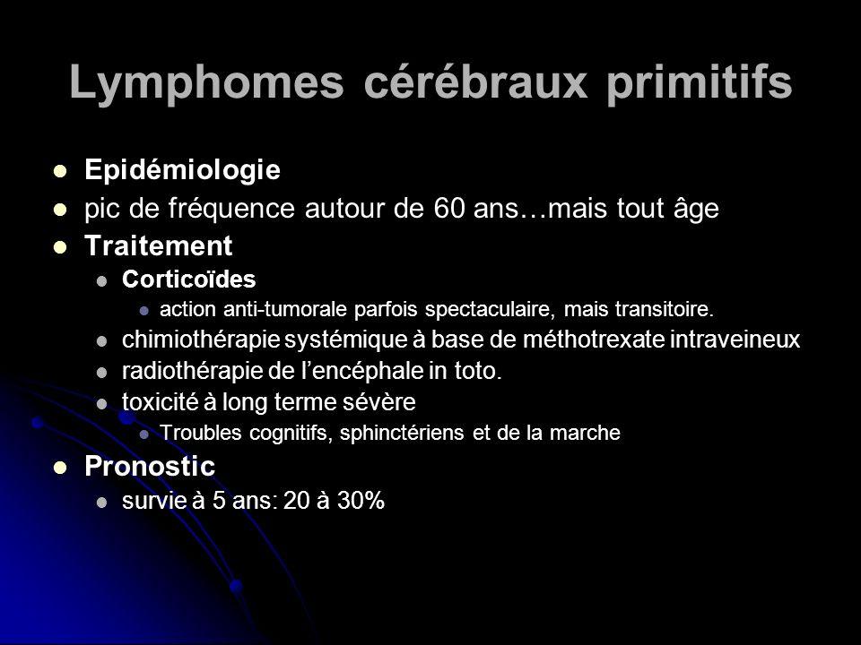 Lymphomes cérébraux primitifs