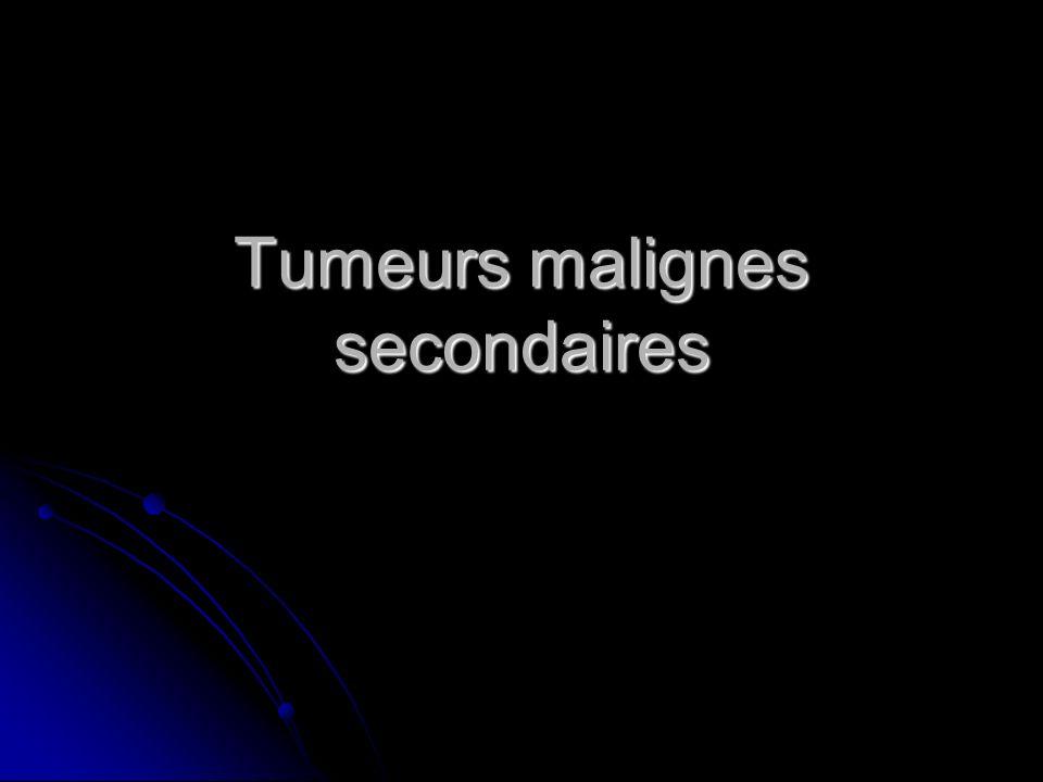 Tumeurs malignes secondaires