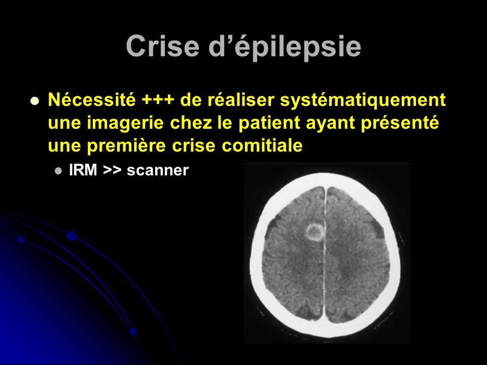 Crise d'épilepsie Nécessité +++ de réaliser systématiquement une imagerie chez le patient ayant présenté une première crise comitiale.
