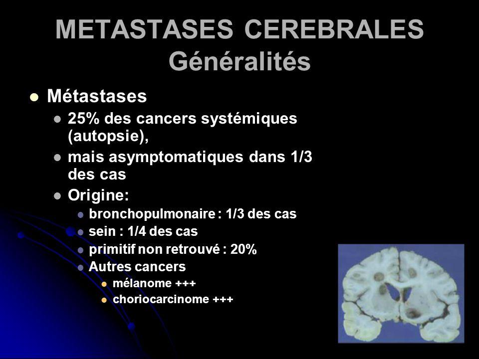 METASTASES CEREBRALES Généralités