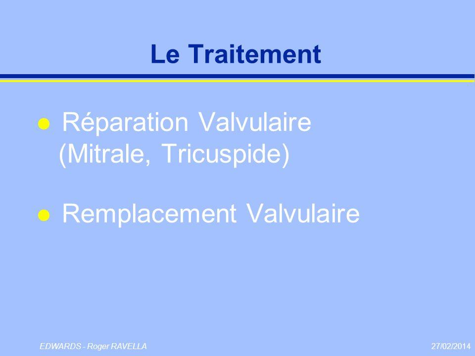 Le Traitement Réparation Valvulaire (Mitrale, Tricuspide) Remplacement Valvulaire