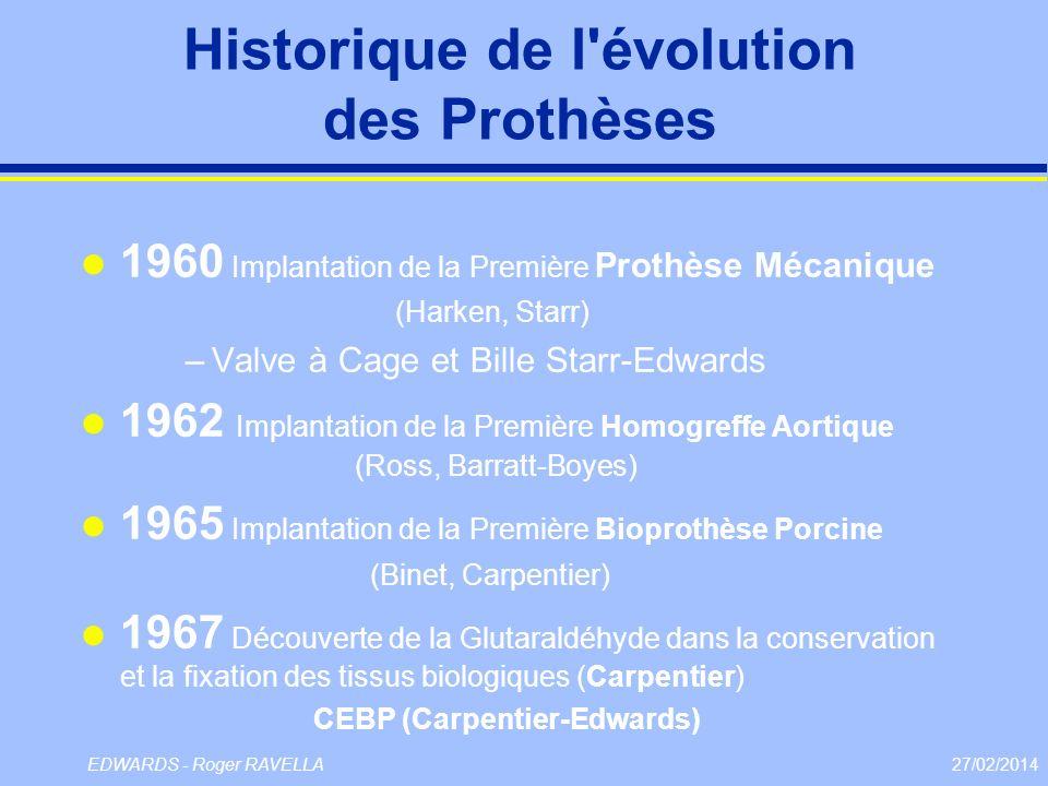 Historique de l évolution des Prothèses
