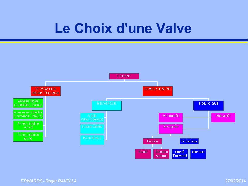 Le Choix d une Valve