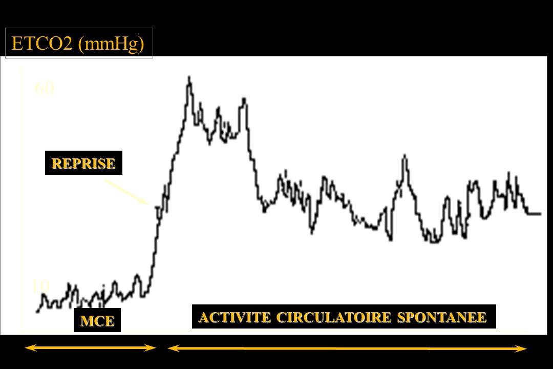 ETCO2 (mmHg) 60 REPRISE 10 ACTIVITE CIRCULATOIRE SPONTANEE MCE