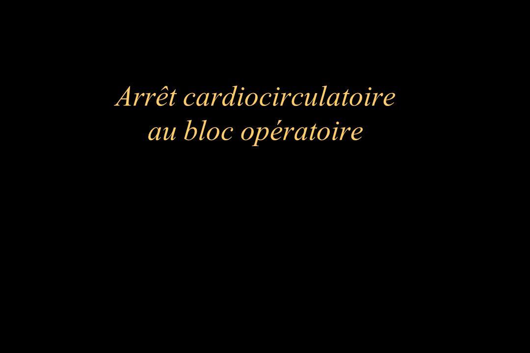 Arrêt cardiocirculatoire au bloc opératoire
