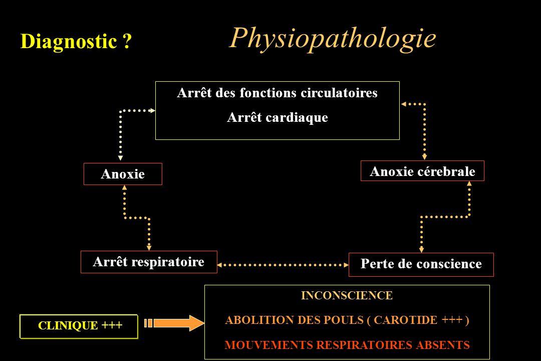 Arrêt des fonctions circulatoires