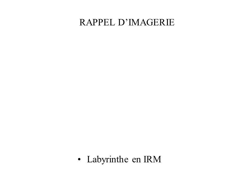 RAPPEL D'IMAGERIE Labyrinthe en IRM