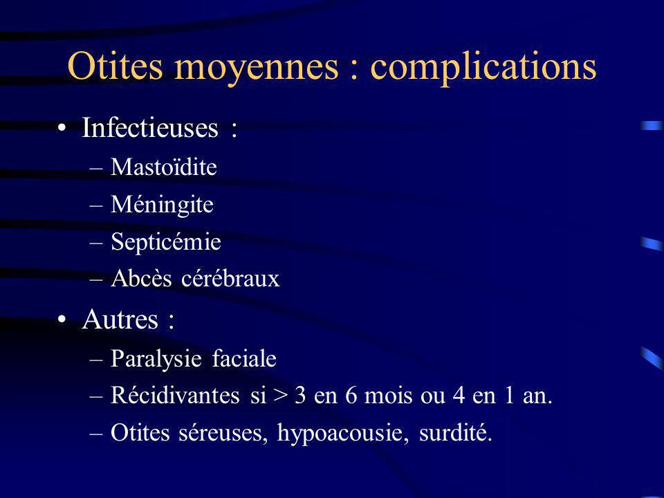 Otites moyennes : complications