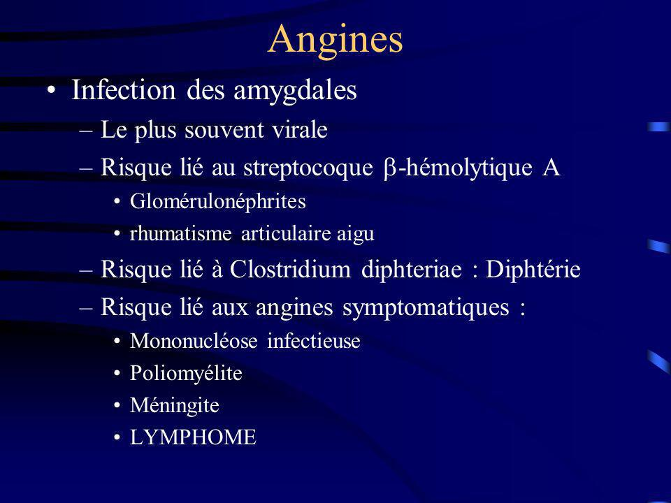 Angines Infection des amygdales Le plus souvent virale